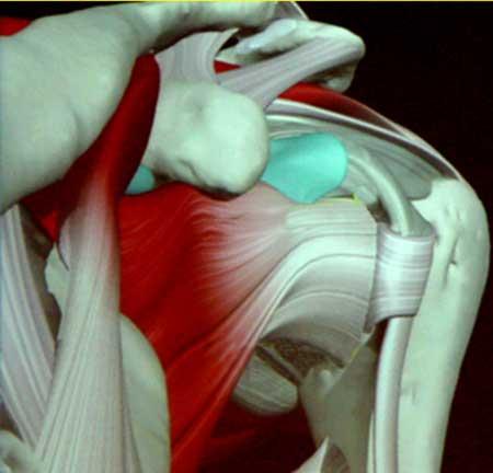 Операция плечевого сустава при привычном вывихе лечение стойкой контрактуры колленных суставов прибором шубоши после ишемического инсульт