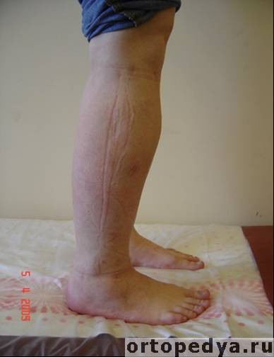 аппарат елизаров на коленный сустав