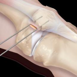 Привычный вывих коленного сустава операция растяжение разрыв связок голеностопного сустава бывают примеры