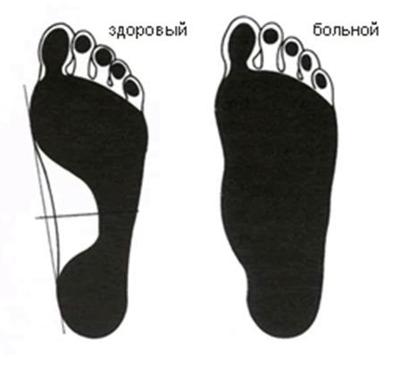Что делать если болит косточка на ноге сбоку на щиколотке с внешней стороны