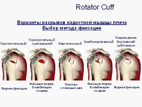 Лечение травм плечевого сустава